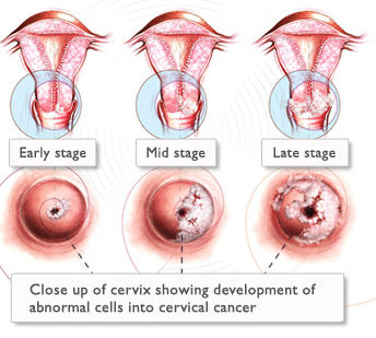 changes of the cervix over time leading to cervical cancer