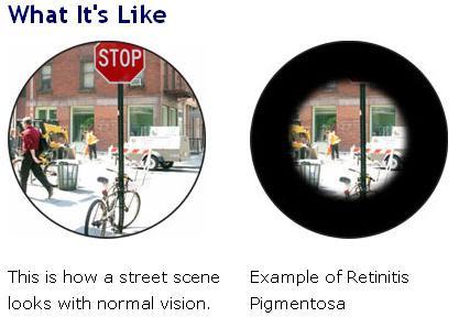 retinis-pigmentosa